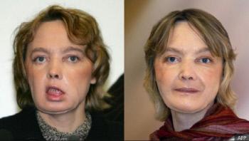 안면 이식수술을 받은 지 한 달 정도 지난 2006년 2월 초의 디누아르 모습(왼쪽 사진)과 수술 8개월 뒤의 모습(오른쪽).
