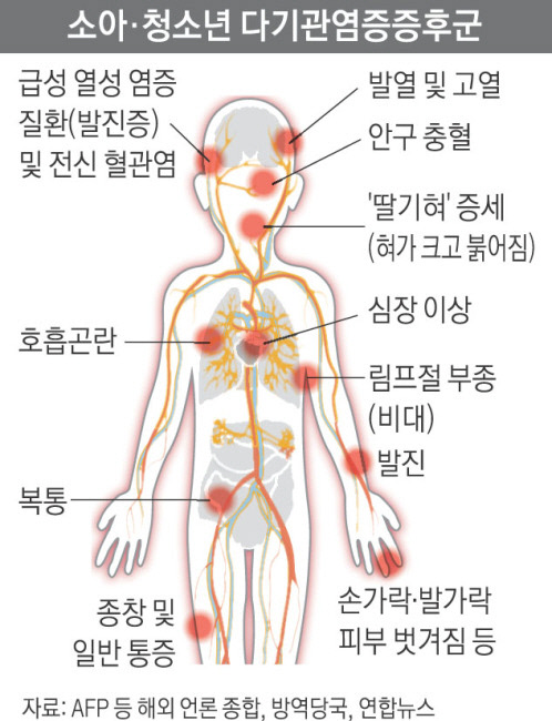 국내서도 '소아 다기관염증증후군' 환자 2명 발생 확인