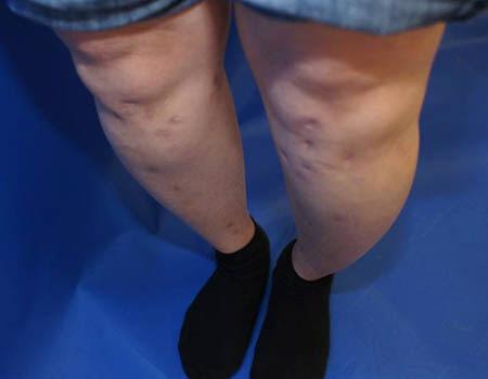 키수술 후 휘어진 다리. | 분당차병원 제공